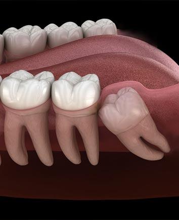 Wisdom Teeth Extraction | Paramount Dental | North Calgary | Family and General Dentist