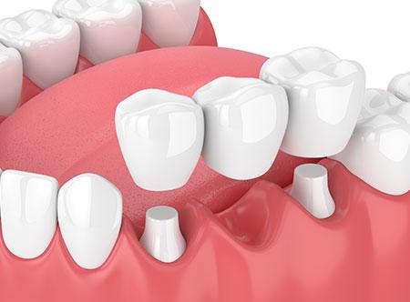 Dental Bridges   Paramount Dental   North Calgary   Family and General Dentist