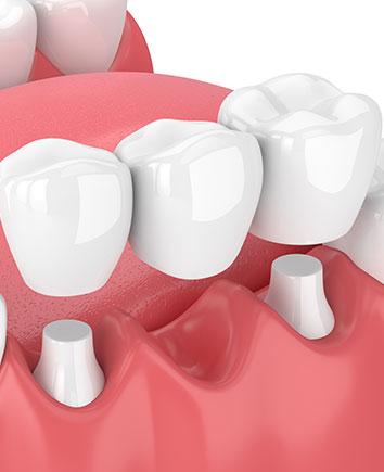 Dental Bridges | Paramount Dental | North Calgary | Family and General Dentist