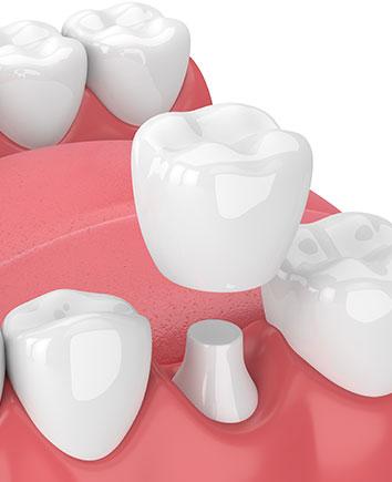 Dental Crowns | Paramount Dental | North Calgary | Family and General Dentist