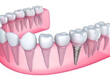 Dental Implants   Paramount Dental   North Calgary   Family and General Dentist