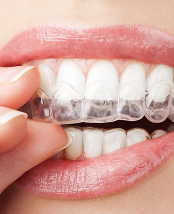Invisalign Clear Aligners | Paramount Dental | North Calgary | Family and General Dentist