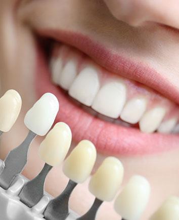 Porcelain Veneers | Paramount Dental | North Calgary | Family and General Dentist