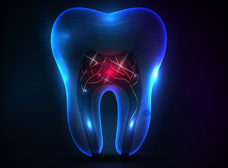 Root Canal Therapy   Paramount Dental   North Calgary   Family and General Dentist
