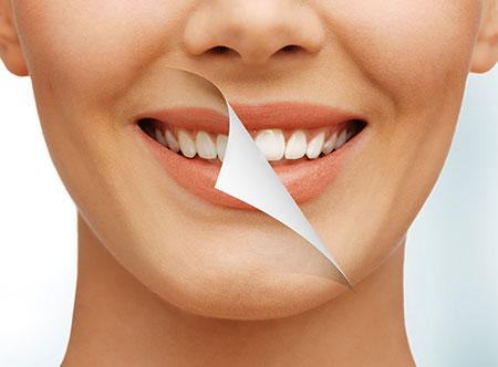 Teeth Whitening   Paramount Dental   North Calgary   Family and General Dentist