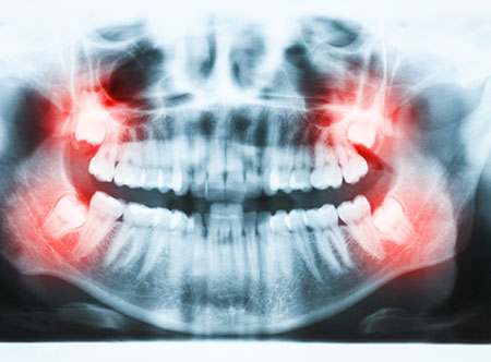 Wisdom Teeth Extractions | Paramount Dental | North Calgary | Family and General Dentist